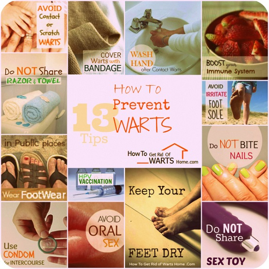 How To Prevent Warts Tips