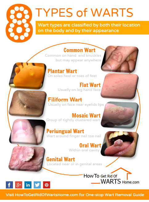 Types of Warts by HowToGetRidOfWartsHomeDotCom