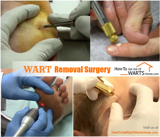 Wart Removal Surgery Picture