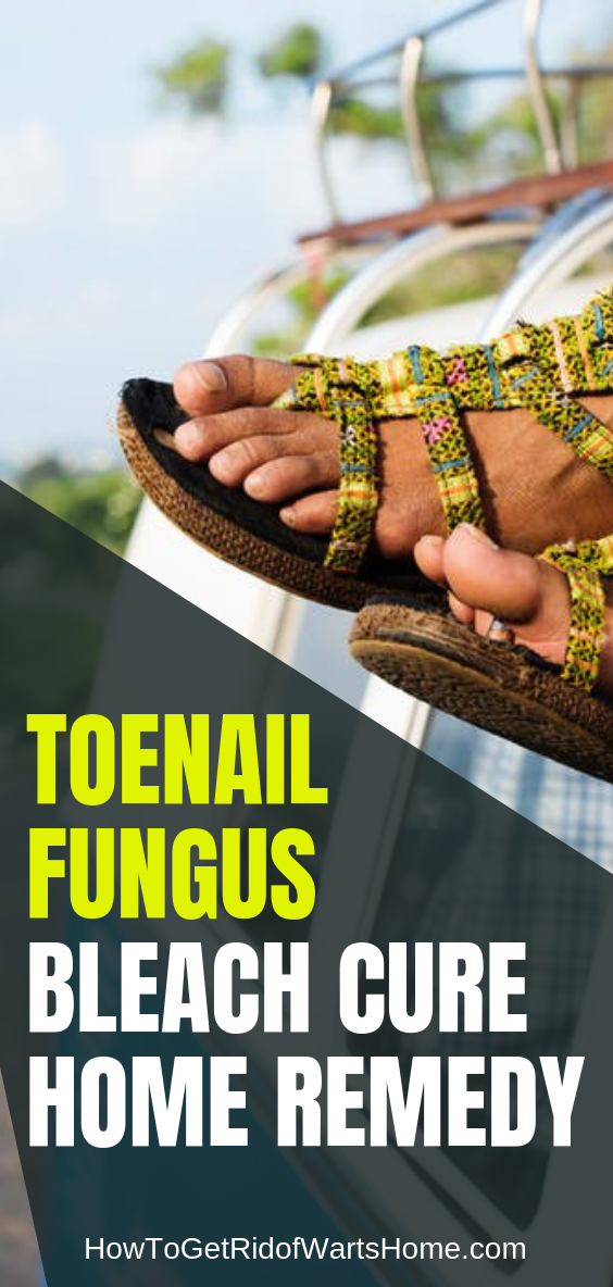 Toenail Fungus Bleach Cure: Effective at Early Stage - or Alternative?