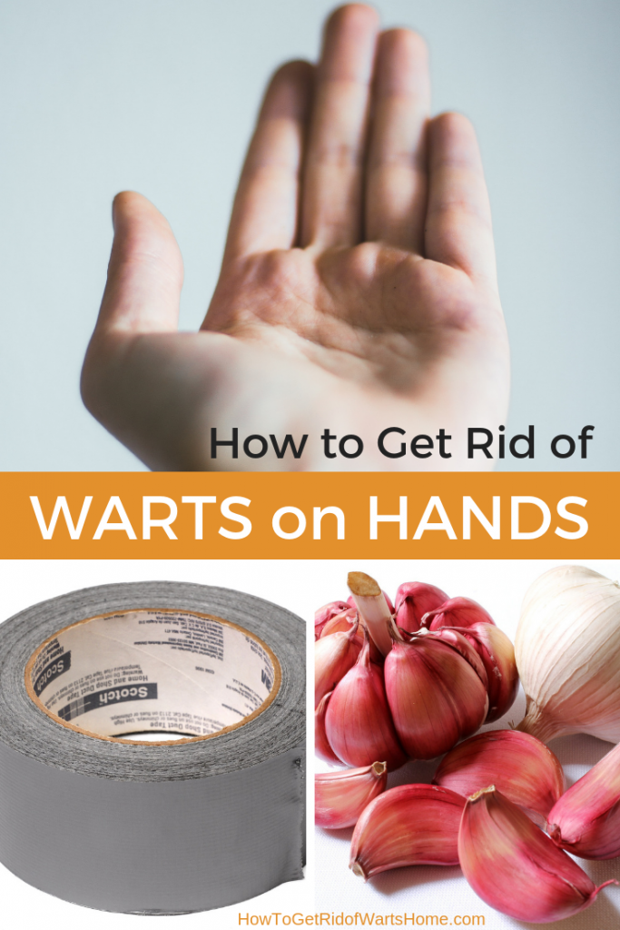 How to Get Rid of Warts on Hands Fast