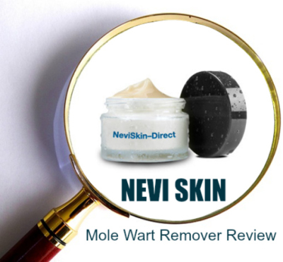 Nevi-Skin Mole and Wart Removal Cream Reviews: Does It Work?