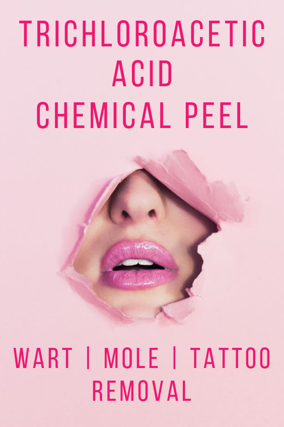Trichloroacetic Acid Chemical Peel