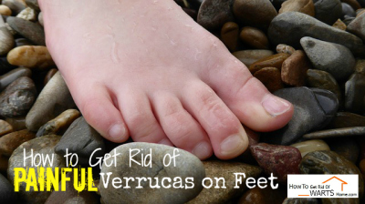 How to Get Rid of Painful Verrucas on Feet: A Struggle of Athletes