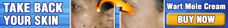nevi-skin-wart-mole-skin-tag-remover