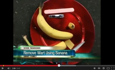 Remove Wart Using Banana