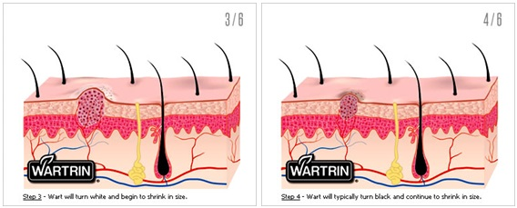 How Does Wartrin Work 1