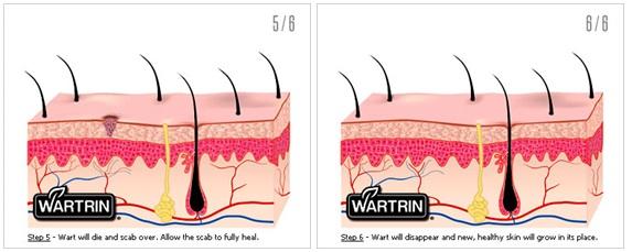 How Does Wartrin Work 2
