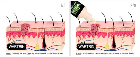 Wartrin Instructions