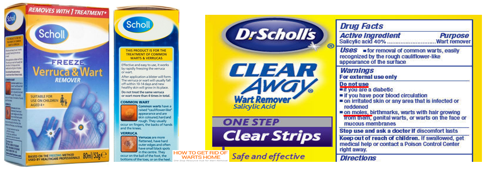 Does Wart Remover Work on Skin Tags and Moles