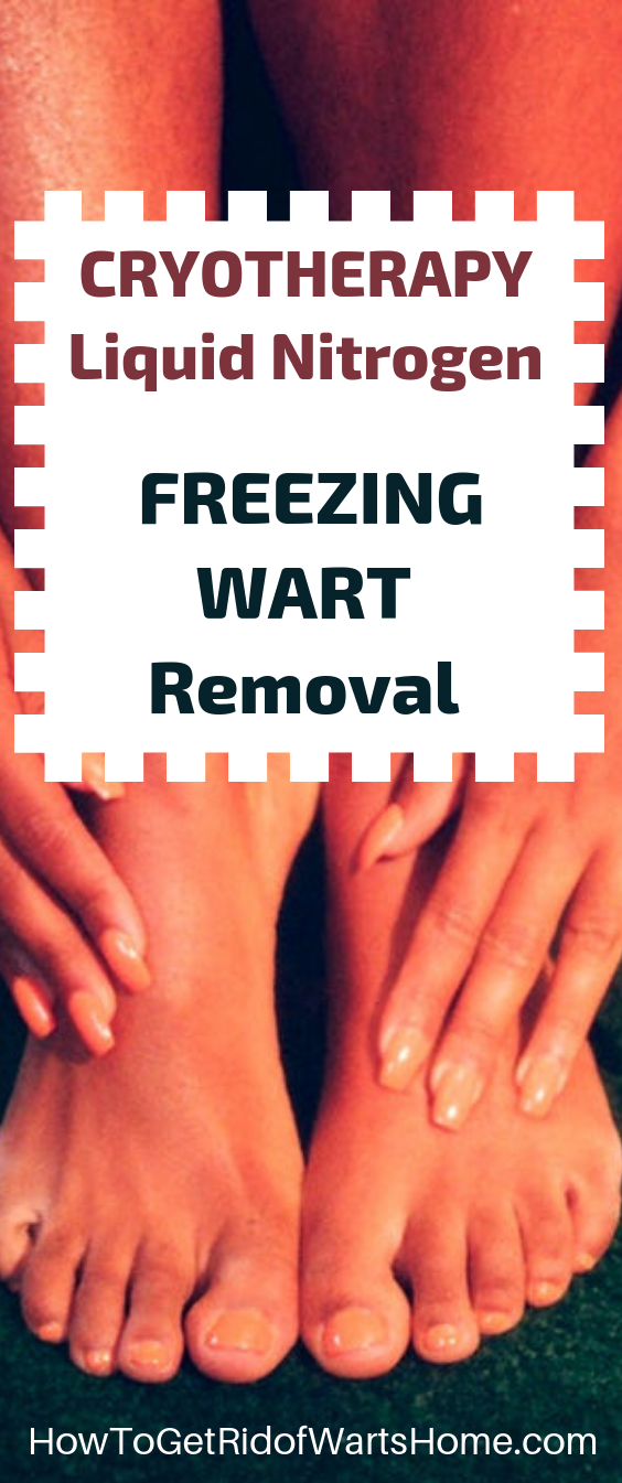 Liquid Nitrogen Freezing Wart Removal Cryotherapy