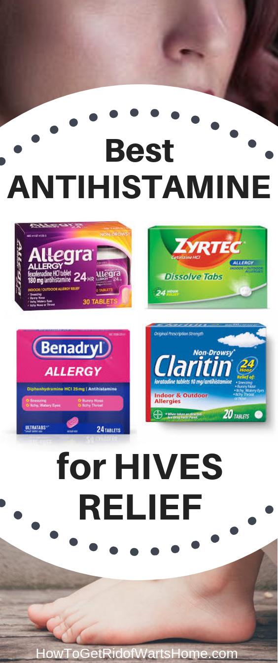 Best Antihistamine for Hives Relief