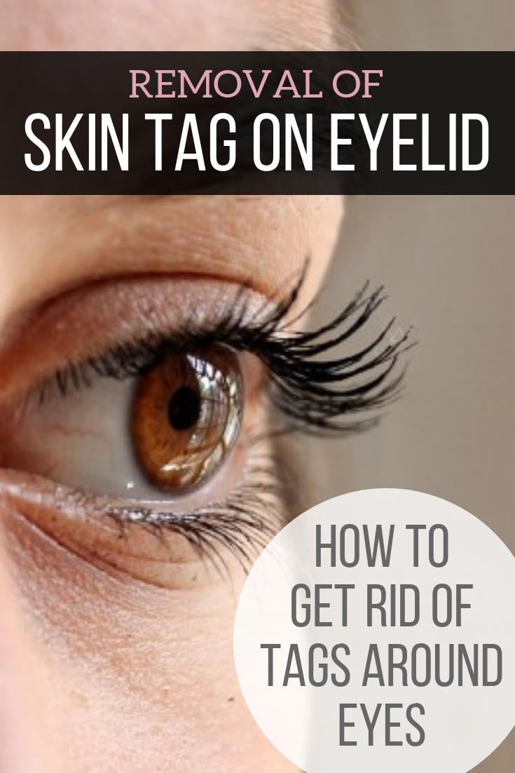 Skin Tag on Eyelid Removal