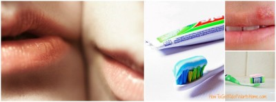 Toothpaste on Cold Sore Overnight Home Remedy
