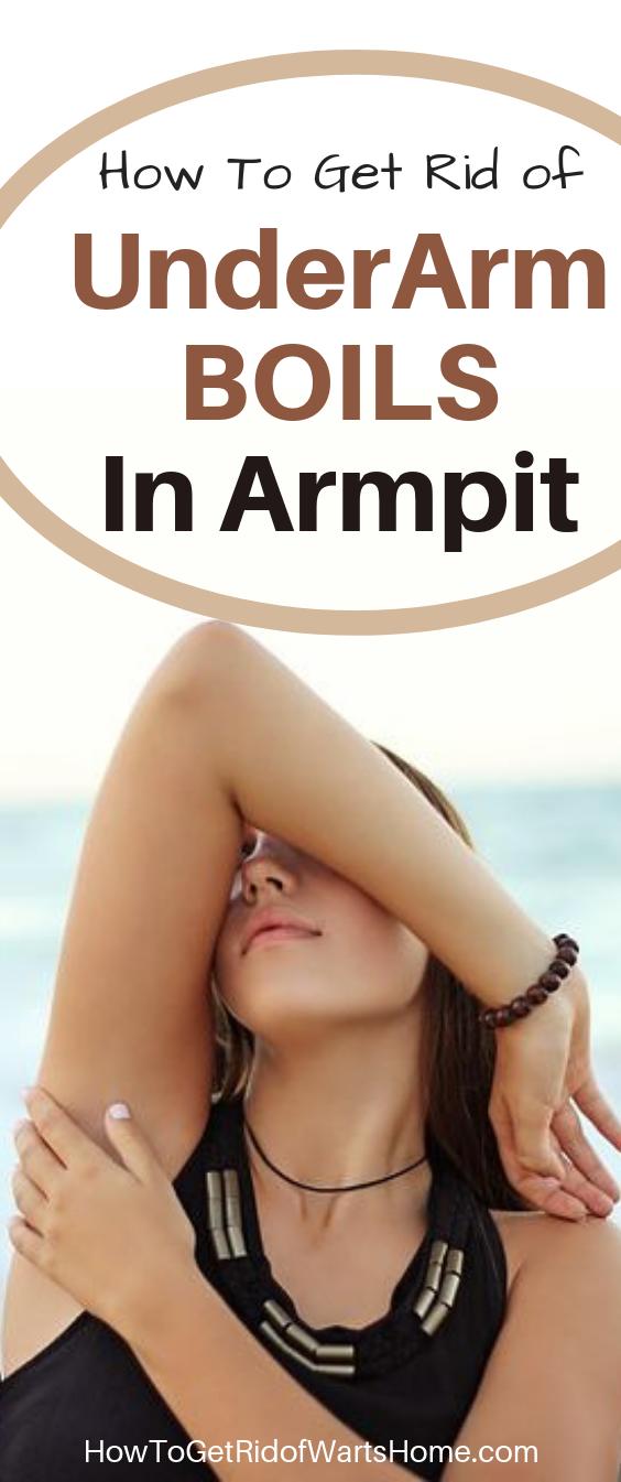 Underarm Boils in Armpit Treatment