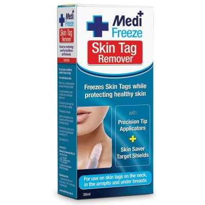 Medi freeze skin tag remover review