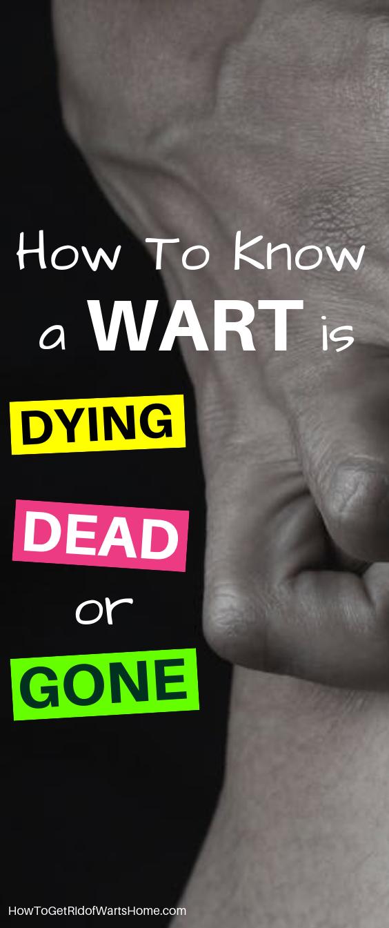 Dead Wart Verruca Dying Gone