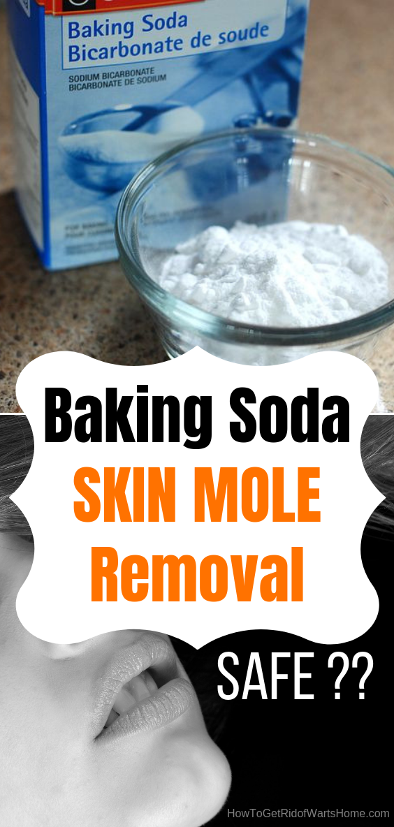 How to Get Rid of Moles Baking Soda