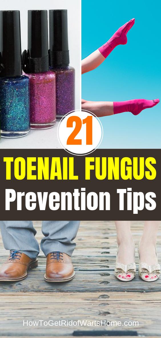 Toenail Fungus Prevention