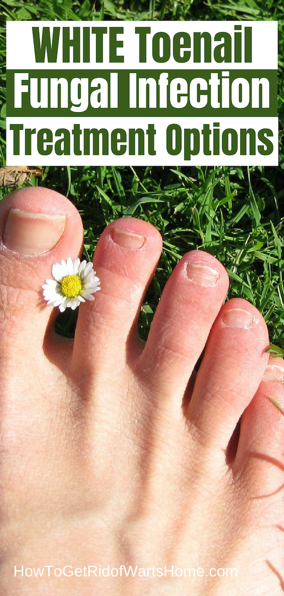 White Toenail Fungus Fungal Infection